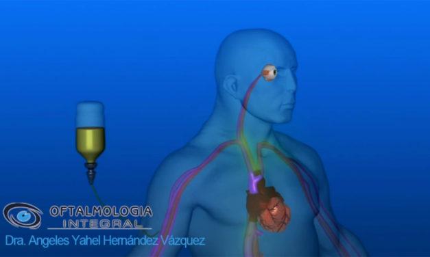 Estudio de Fluorangiografia