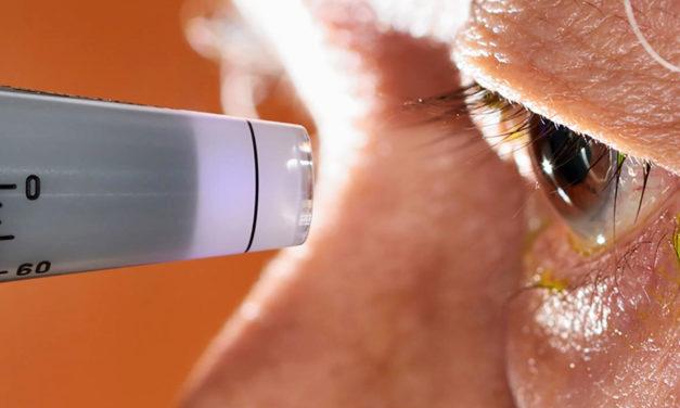 Hipertensión ocular